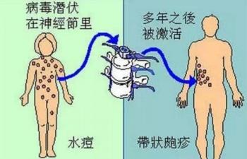 青岛内分泌失调会引起带状疱疹吗