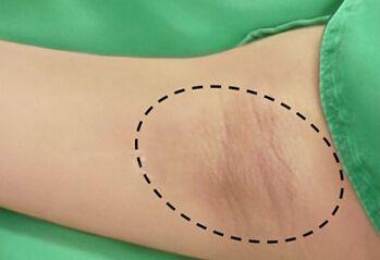 青岛导致女性得腋臭的主要原因是什么