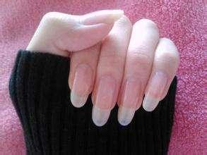 即墨皮肤医生:灰指甲生活中应该怎么护理