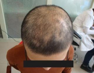 胶州患有了斑秃应该注意哪些问题