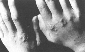 即墨皮肤医生介绍患了扁平疣会有哪些症状