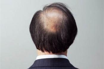莱西皮肤医生解答脂溢性脱发的原因主要有哪些