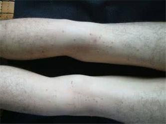 即墨传染性软疣的发病特征有哪些