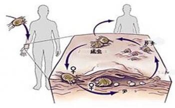 胶州疥疮治疗的方法都有哪些