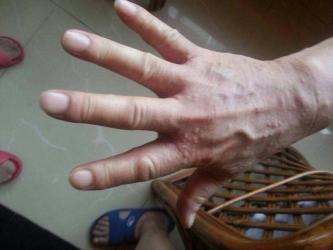 莱西皮肤专家解答患有疥疮怎么护理