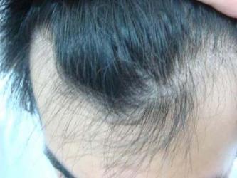 黄岛脂溢性脱发的症状都有哪些