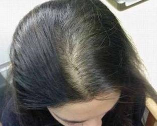青岛怎样能预防脂溢性脱发