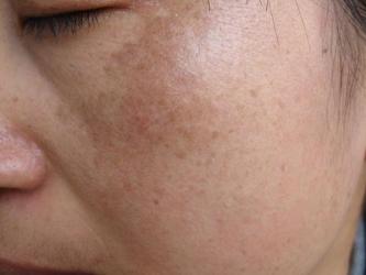青岛皮肤医生介绍黄褐斑病因是什么