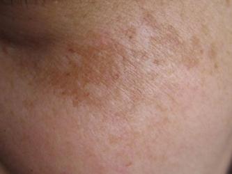 黄褐斑的发病症状表现什么样