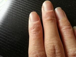 城阳手足癣具体有什么症状