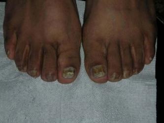 为什么灰指甲的诊断和治疗比较困难