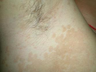 青岛花斑癣的预防方法都有什么