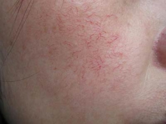 红血丝皮肤护理方法怎么做