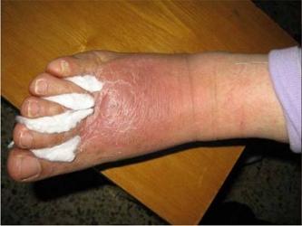 长脚气会给患者什么病痛