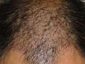 脱发是怎么发生的