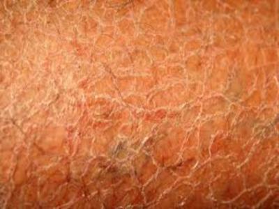 四种鱼鳞病的症状表现有哪些