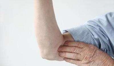 皮肤瘙痒症的护理措施