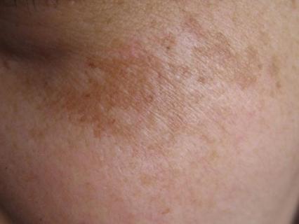 黄褐斑会给身体带来哪些危害