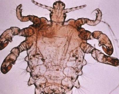 阴虱是通过什么传染的