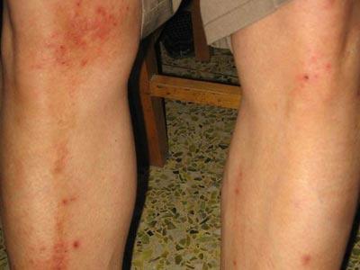 腿上干燥脱皮是怎么回事