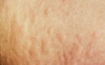 青岛湿疹常见的部位有哪些