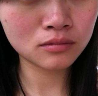 皮肤过敏和年龄有关吗