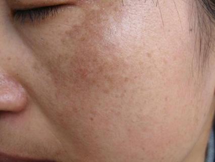 脸上湿疹有哪些明显症状
