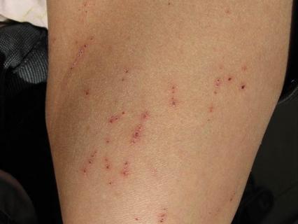 老年人皮肤痒会有哪些明显症状