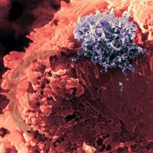 生殖器疱疹有什么症状表现