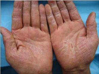 手部出现湿疹的具体病因是哪些