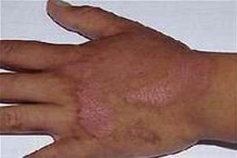 怎样预防自体敏感性皮炎的复发