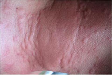 慢性荨麻疹应如何治疗
