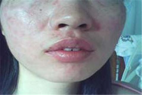 脸部皮肤过敏怎么护理好