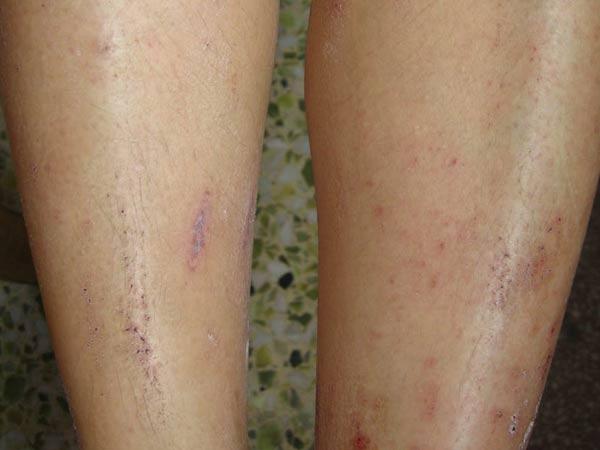 平时如何预防皮肤瘙痒