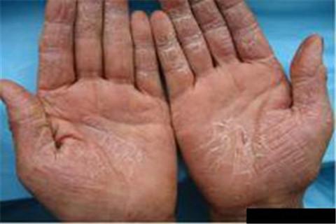 怎么预防手部湿疹比较好