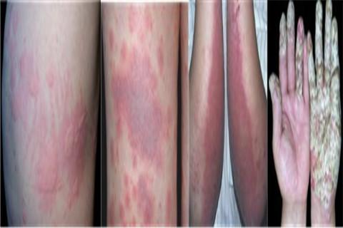 青岛治疗皮肤过敏要花多少钱