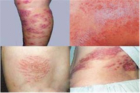化妆品是怎么引起皮肤过敏导致瘙痒